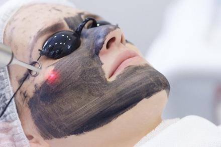 Hollywood peel laser
